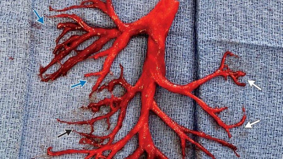 El hombre tose un coágulo de sangre asombroso con forma de árbol bronquial